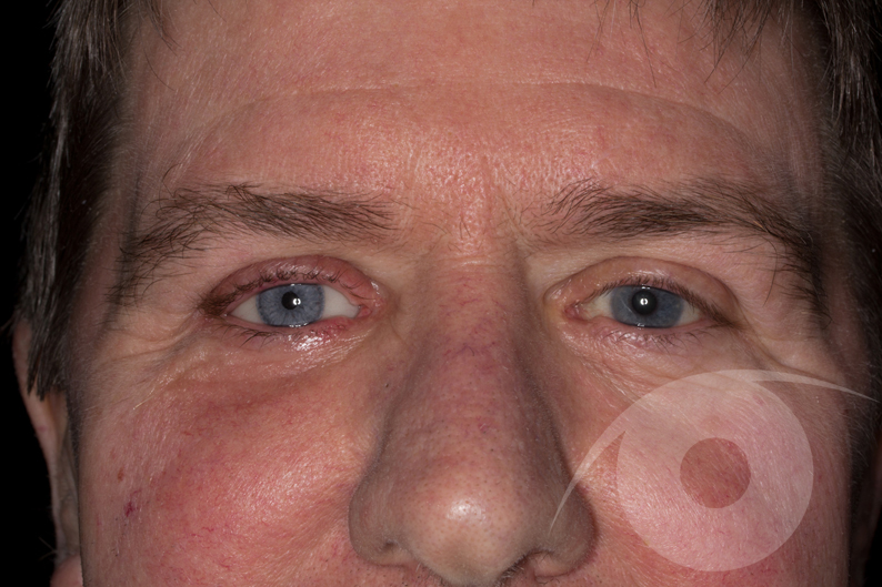 After insertion of artificial eye
